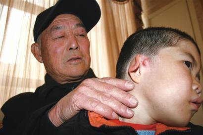 咨询过,对畸形耳朵